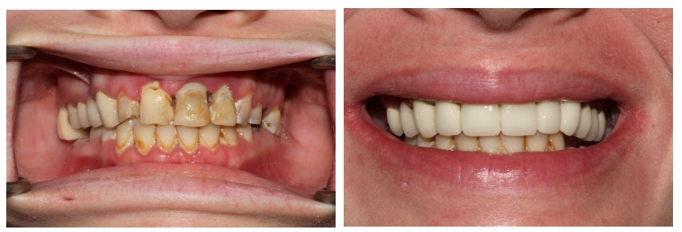 Smile makeover before and after dental treatment