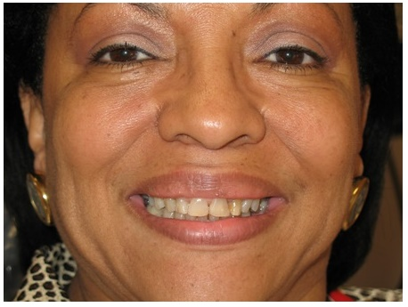 Smile makeover before dental treatment